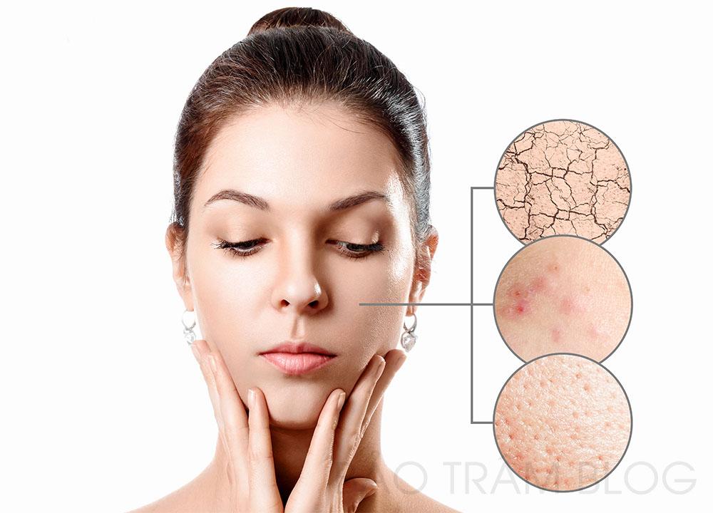 cách phân biệt da mặt