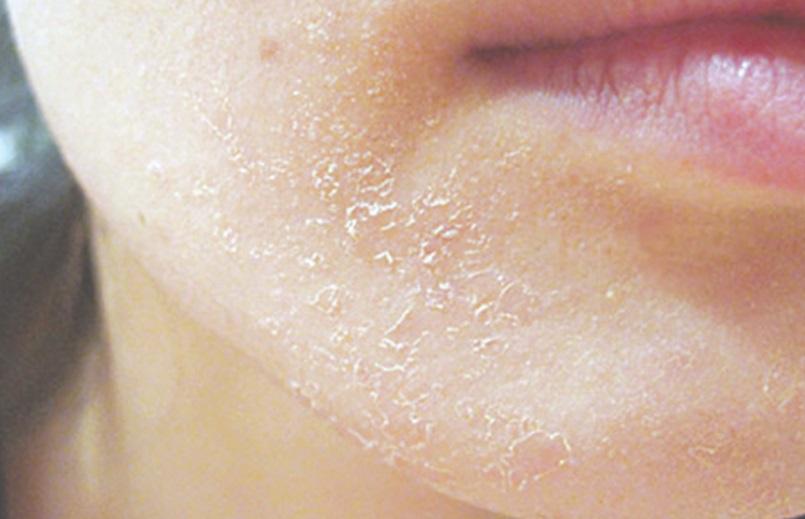 chăm sóc da mặt khô