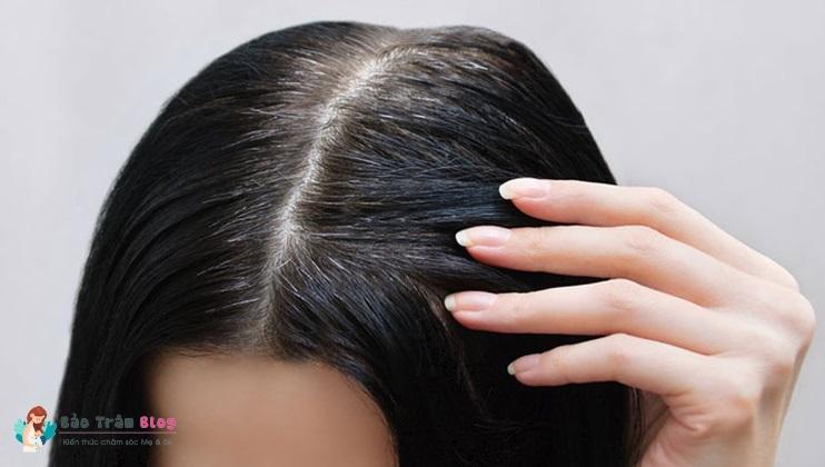 Nguyên nhân tóc bạc sớm và cách điều trị
